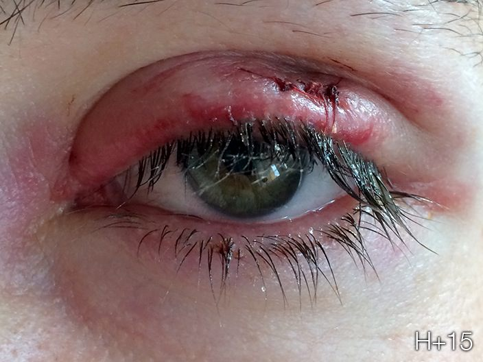 how to get rid of stye bump